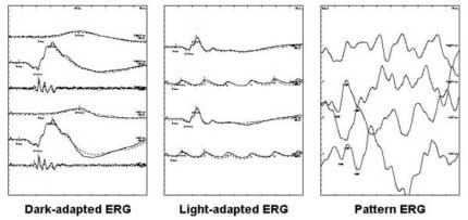 The-Electro-Retinogram-(ERG)