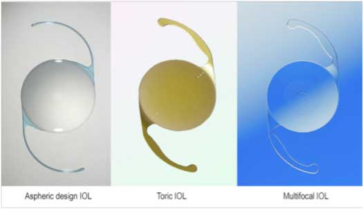 Types Of Intraocular Lenses Iols Monofocal Iols Toric