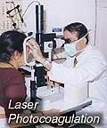 laser-photograf